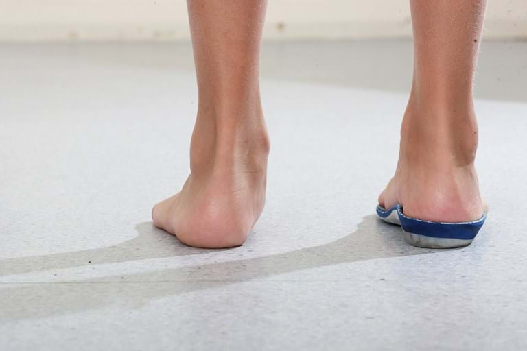 Flat Feet Over Pronation