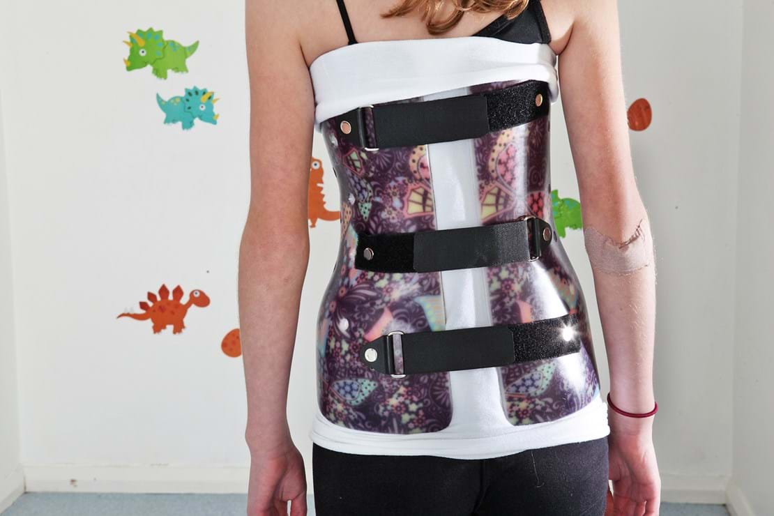 Scoliosis brace - Patterned Butterfly and Black straps